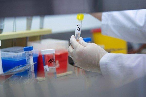 İtaliyada pandemiya qurbanlarının sayı artıb