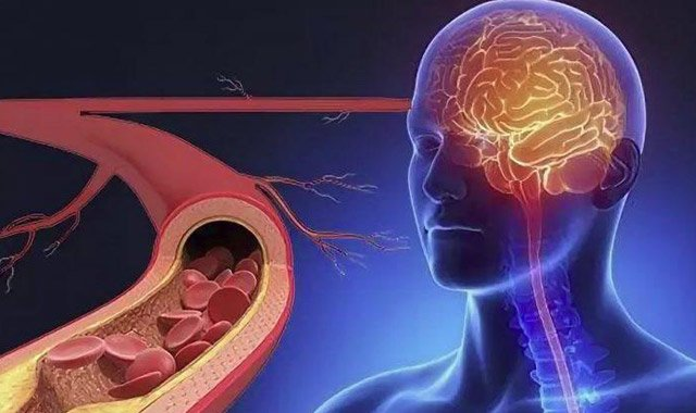 Məşhur akademikdən beyin damarlarını təmizləyən RESEPT
