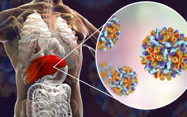 Ağır qaraciyər xəstəliklərinin əsas səbəbi - Hepatit C, B və D virusları