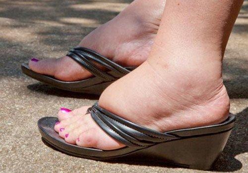 Ayaqlarda şişkinliyi azaldan dəmləmələr. RESEPTLƏR