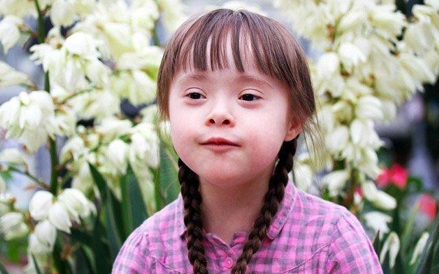 Ən çox rast gəlinən xromosom anomaliyası - DAUN SİNDROMU